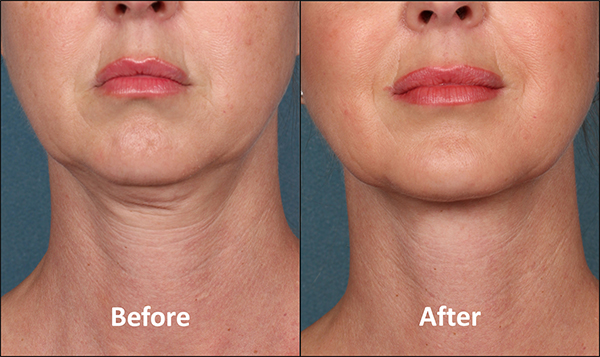 Kybella_before_after