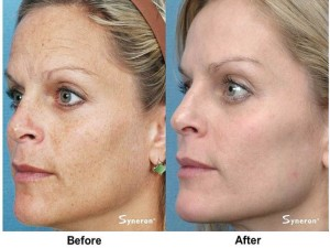 Syneron-ff-before-and-after