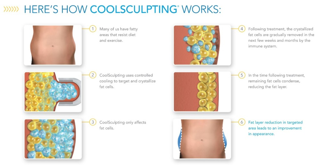 Here's how CoolSculpting Works