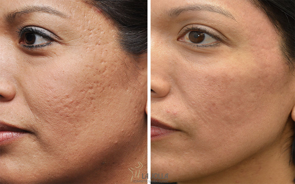 Scars and How to Minimize Them - Comprehensive Dermatology ...