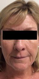 cosmetic-dermatology-